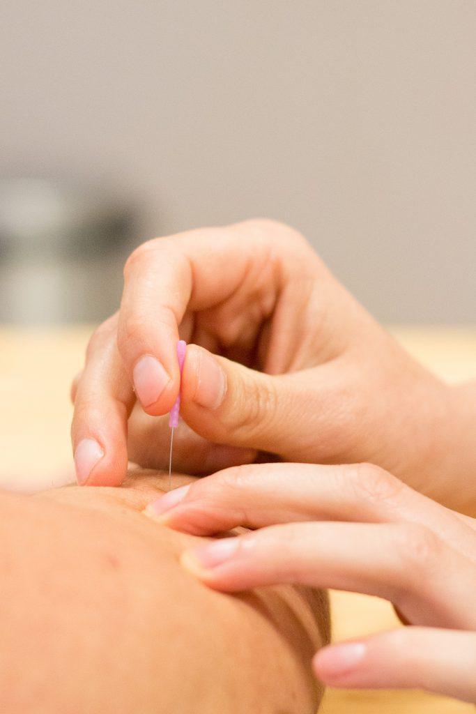 dry needling